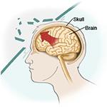 Trauma (Brain and Spine)